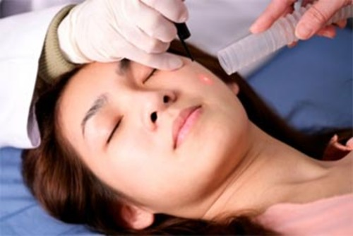 Fractional CO2 acne sacrs treatment
